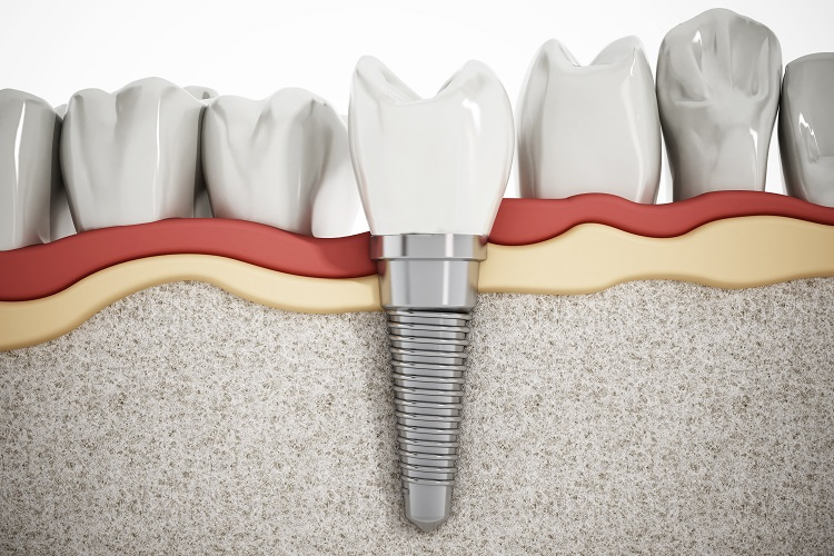 Things You need to know about dental implant