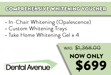 Parramatta dental avenue comprehensive whitening voucher